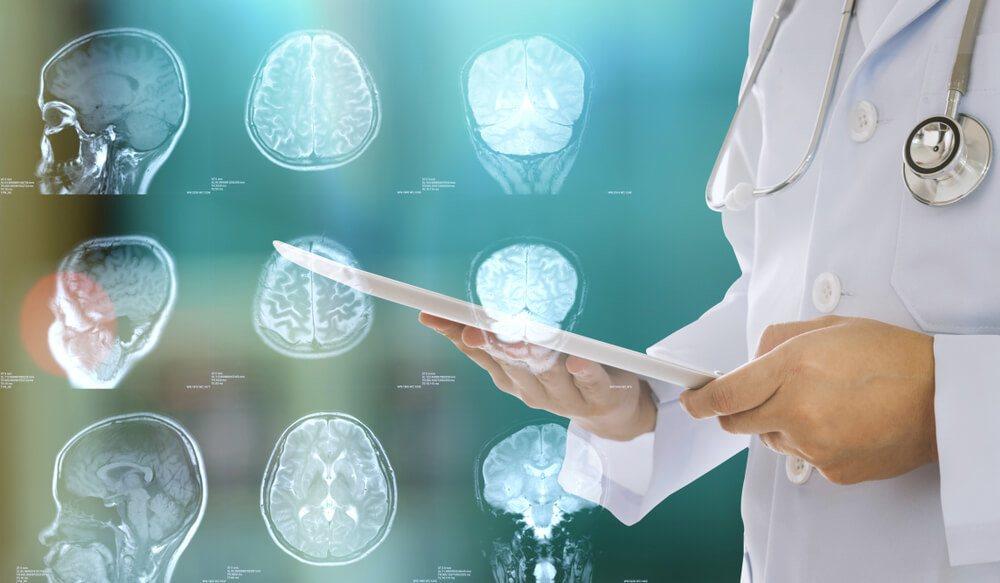 Blood Pressure and Brain Health