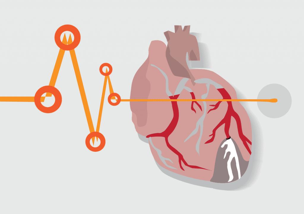 Surprising Heart Disease Risks