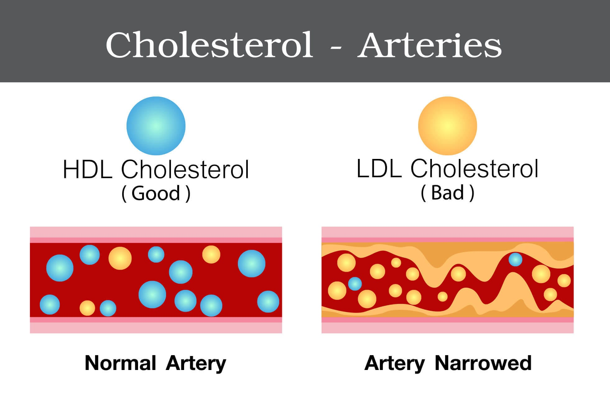 What is a Healthy Cholesterol Level? New Guidelines Show Us.