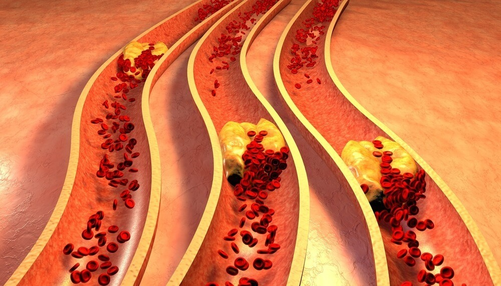 Questions to Ask Your Doctor about Cholesterol
