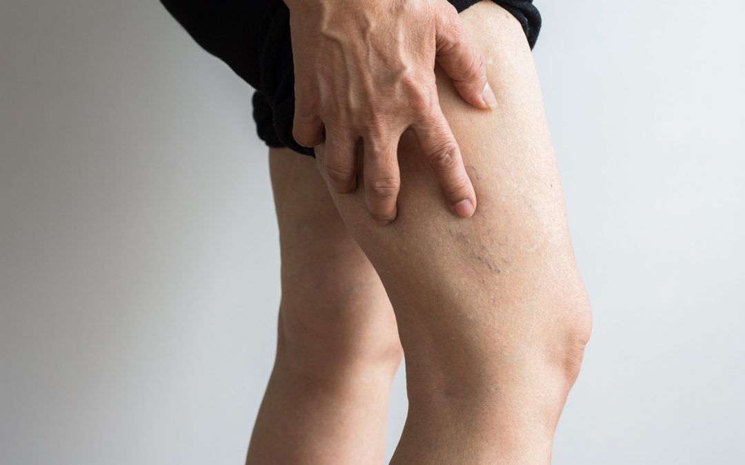 Veins In Legs, How to Get and Keep Them Healthy
