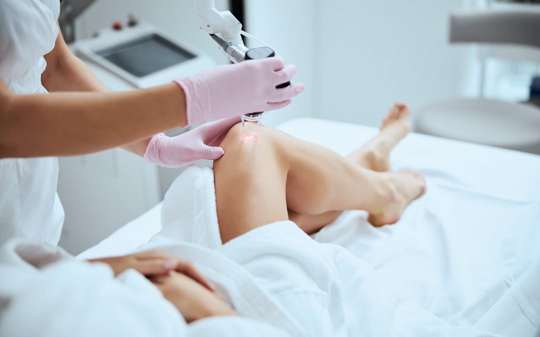 Preventing and Reducing Spider Veins